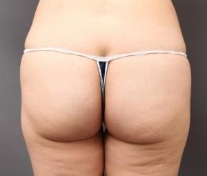 ハートヒップリフト-脂肪吸引
