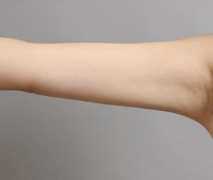 二の腕 脂肪吸引 引き締め