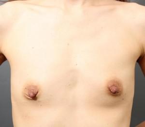 コンデンスリッチ豊胸 乳頭縮小