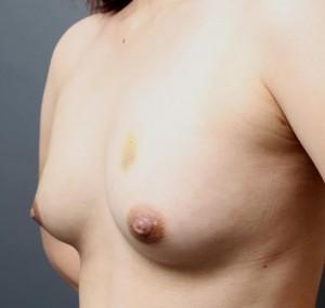 脂肪注入豊胸 術後経過