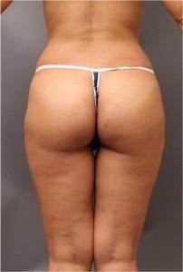 腰 ベイザー脂肪吸引