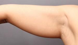二の腕 腕の付け根 脂肪吸引