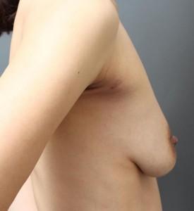 授乳後 CRF豊胸