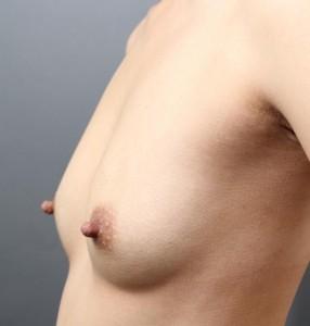 授乳後 コンデンスリッチ豊胸 術後