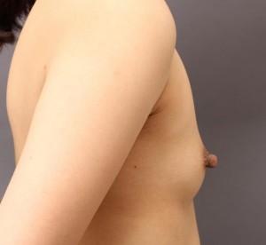 BRAVA+CRF豊胸 乳頭縮小