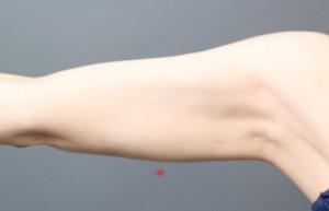 ベイザー サーミタイト 二の腕