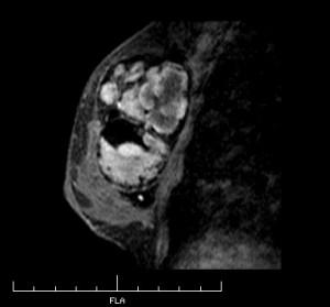 左胸 MRI画像