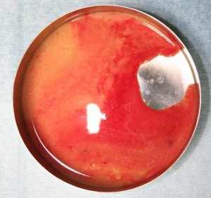 ヒアルロン酸豊胸 炎症