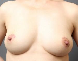 脂肪注入豊胸 しこり治療