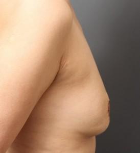 脂肪注入豊胸 しこり