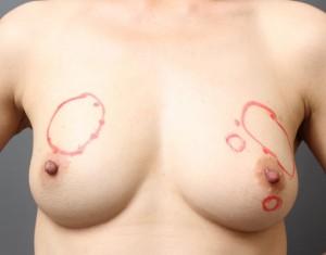 乳輪切開の傷跡