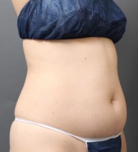 ベイザー脂肪吸引 腹部