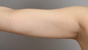 二の腕の脂肪吸引