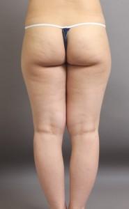 脂肪吸引 太もも