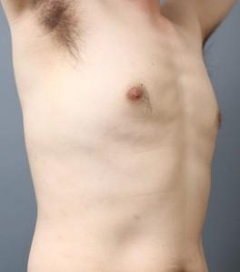 偽性女性化乳房