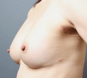 コンデンスリッチ豊胸 授乳後