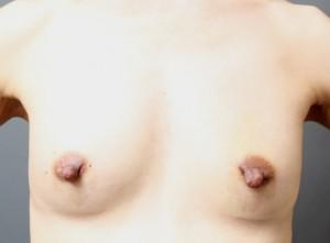 授乳後のコンデンスリッチ豊胸