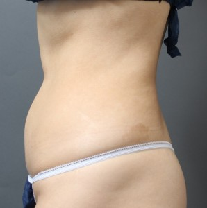 腹部から腰の脂肪吸引