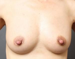 乳頭縮小とcrf豊胸