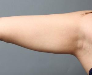 二の腕 脂肪吸引