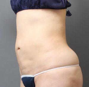 腹部の脂肪吸引