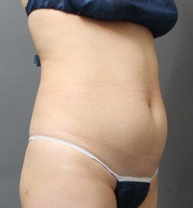 腹部のベイザー脂肪吸引