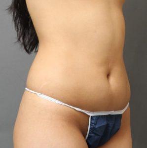 胸下から腹部の脂肪吸引