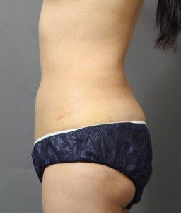ベイザー脂肪吸引1週間後