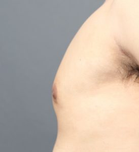 女性化乳房の治療
