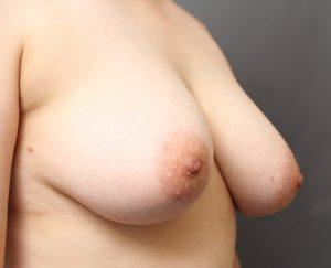 胸 ベイザー サーミタイト