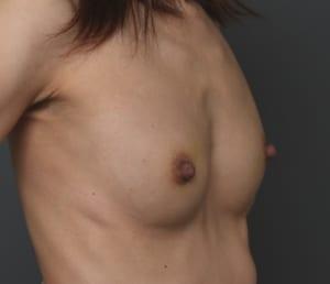 乳頭縮小 CRF豊胸