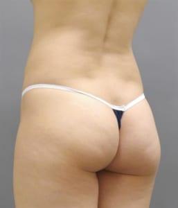 脂肪吸引 腰と臀部下