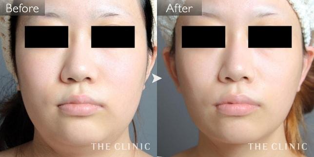 顔の脂肪吸引の症例