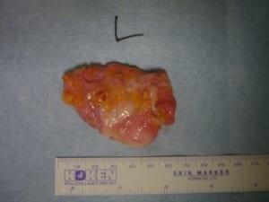 混合性女性化乳房