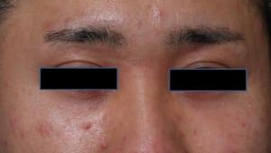 目の上のくぼみ 3Dマルチレイヤー