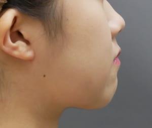 頬顎 脂肪吸引