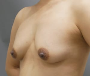 セルチャー豊胸 乳頭縮小
