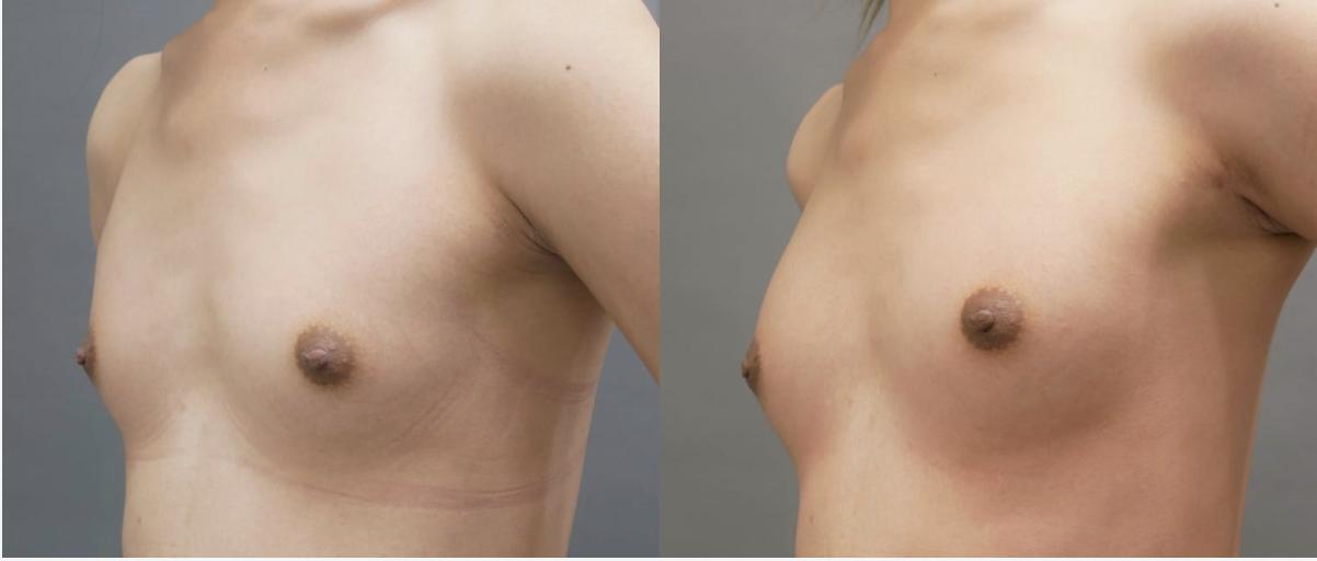 男性の豊胸手術(術後1ヶ月との比較)